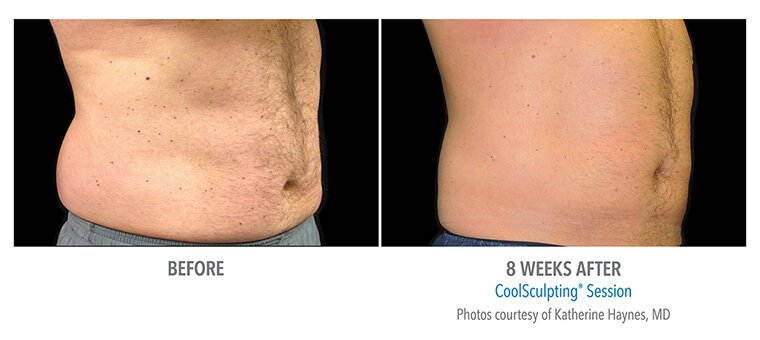 CoolSculpting Treatments in Annapolis, MD and Westminster, MD