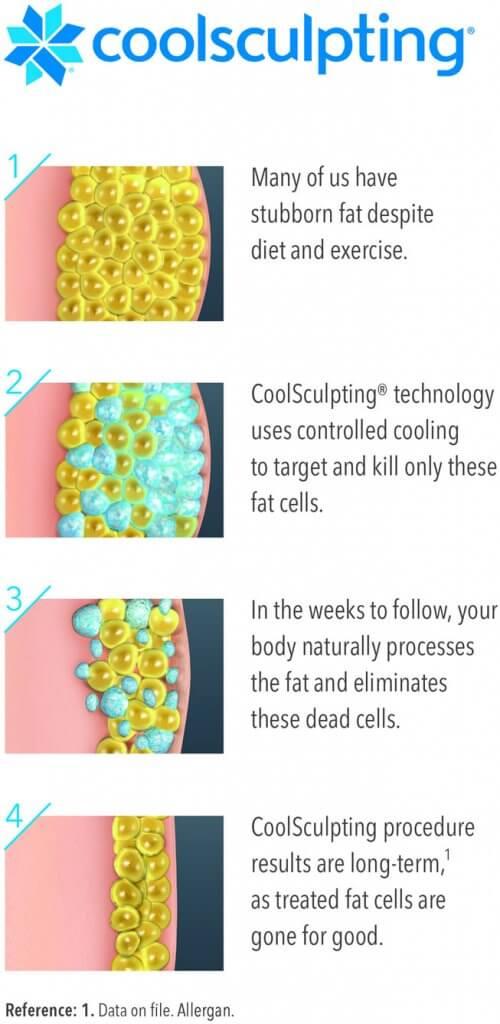 CoolSculpting Process Illustration